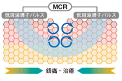 MCR(伊藤超短波:ES-360)